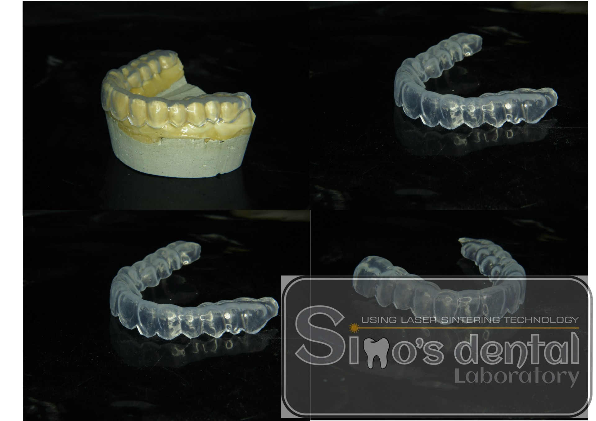 Bruxism Mouth Guard